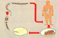 Анкилостомоз у человека